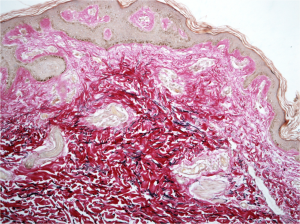 sezione di cute con derma invaso da collagene glicato
