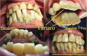 danni-da-fumo-denti-3