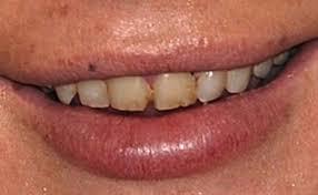 danni-da-fumo-denti2