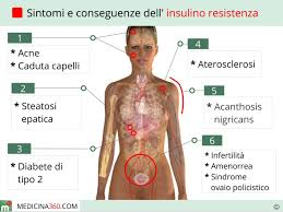 sindr. metabolica insulinoresistenza1